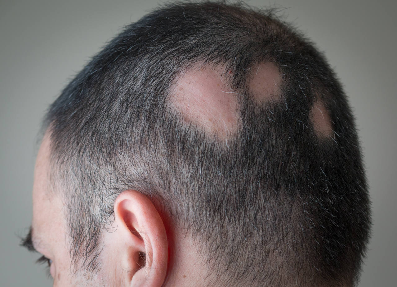 A man suffering from alopecia areata