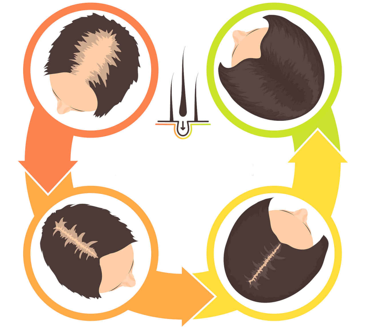 what can trigger a hair loss after a surgery