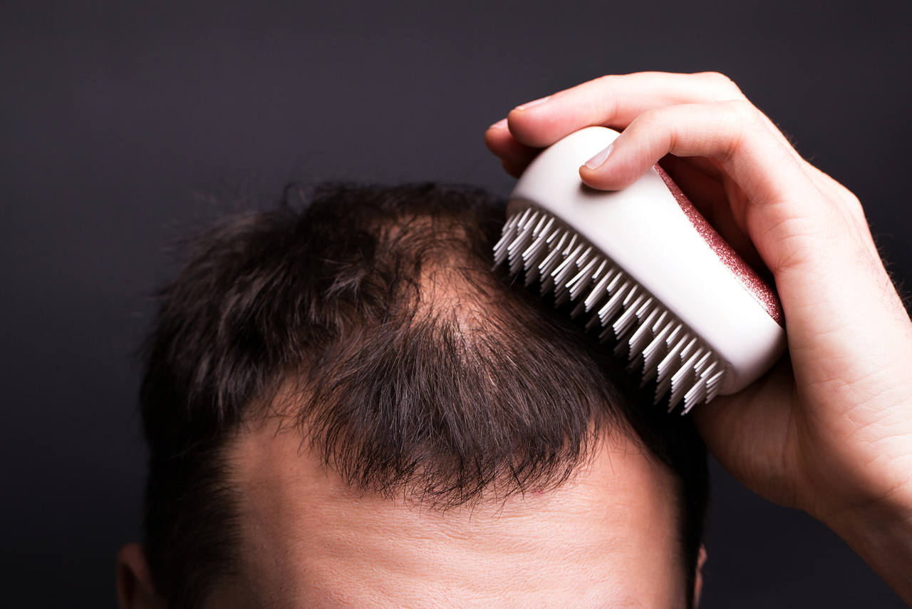what are the causes behind a bald spot