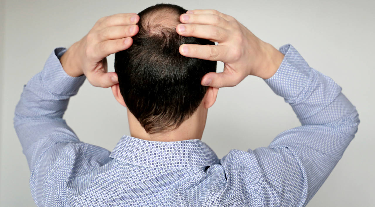 discover everything you need to know about male pattern baldness