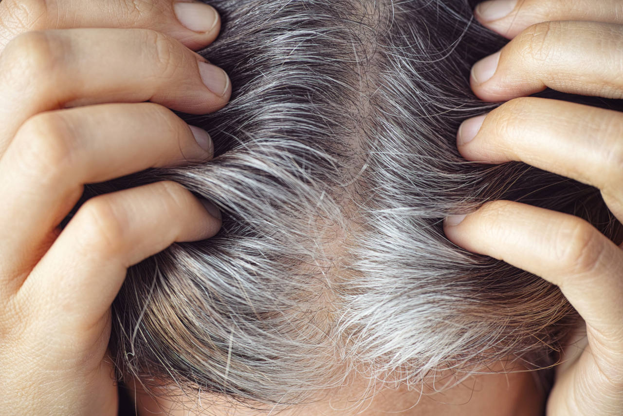 why do we have grey hair