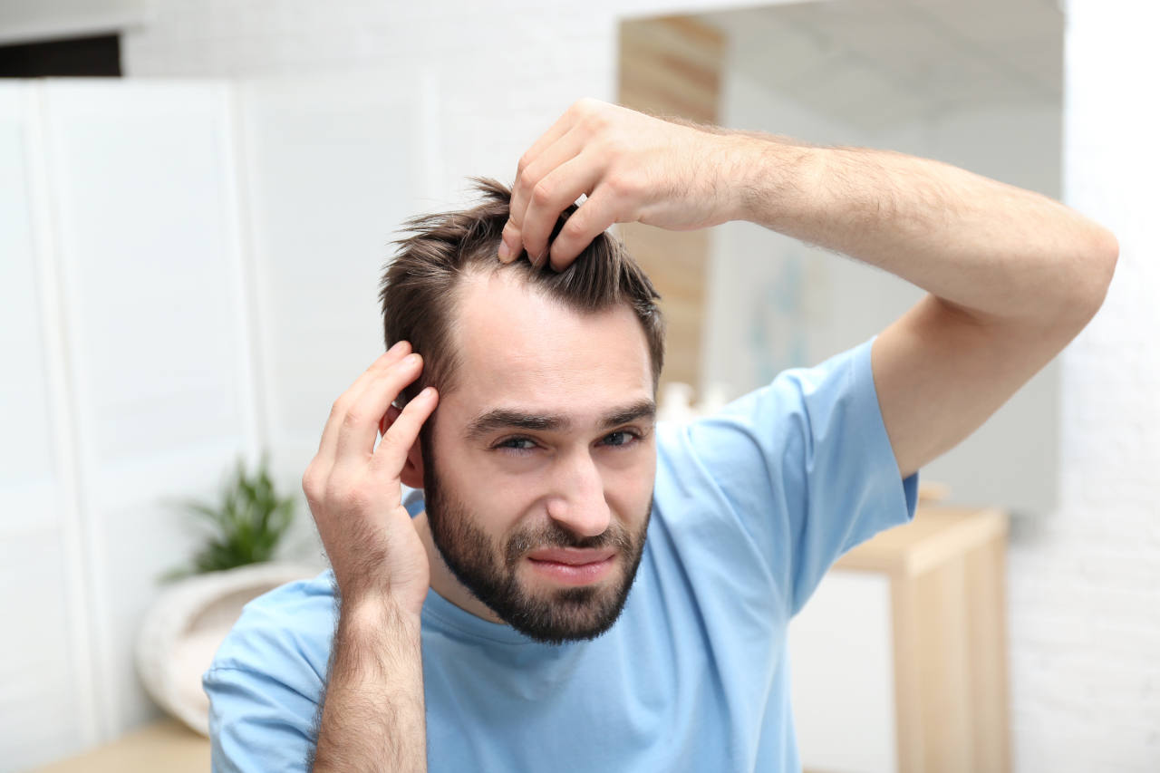 young man with the first signs of DHT hair loss