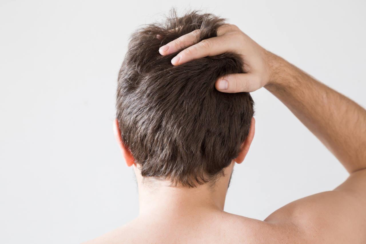Men wondering what has caused his dry hair