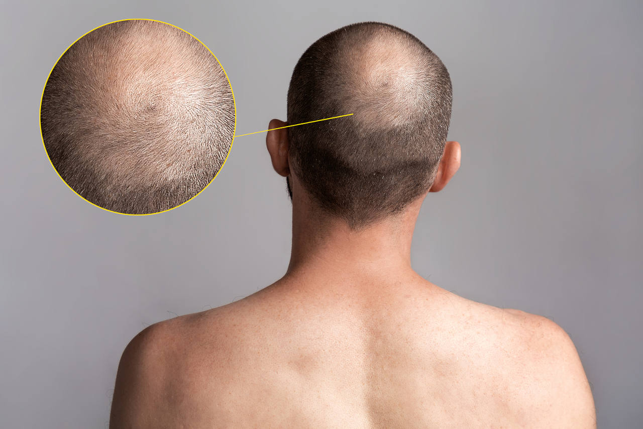 the hair whorl needs a well executed crown hair transplant to recreate the natural spiral