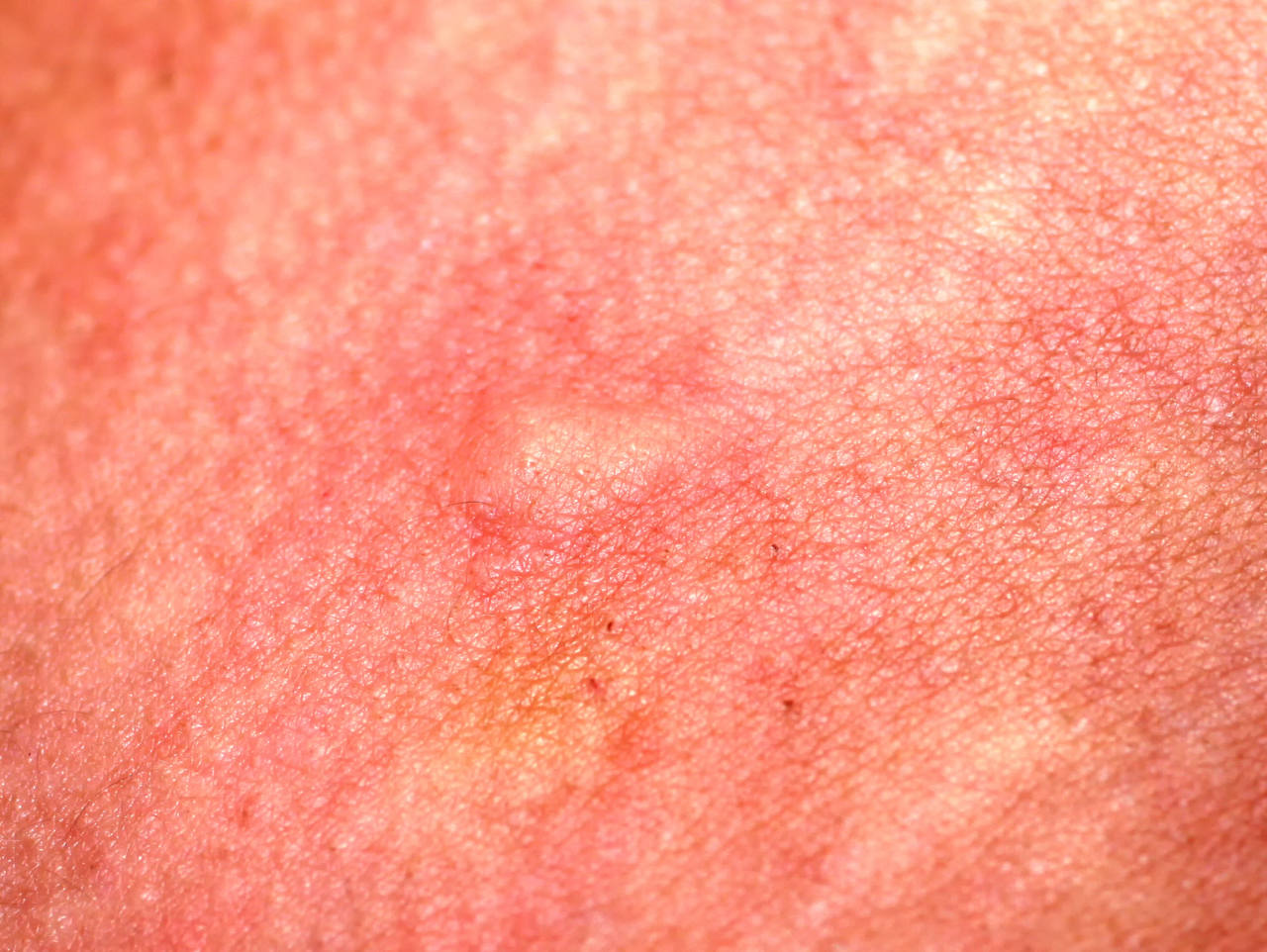 picture of an inflamed scalp