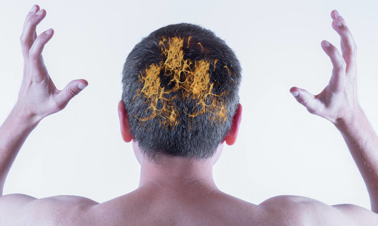 what can be done against an itchy scalp