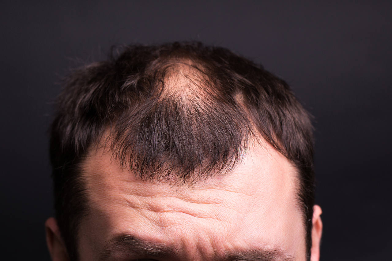 discover the causes of thinning hair that makes men go bald