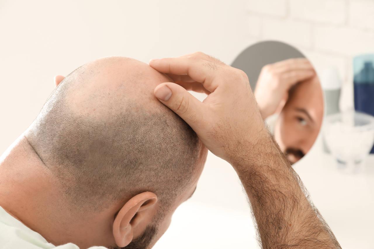 a man looking at his hair starting to bald