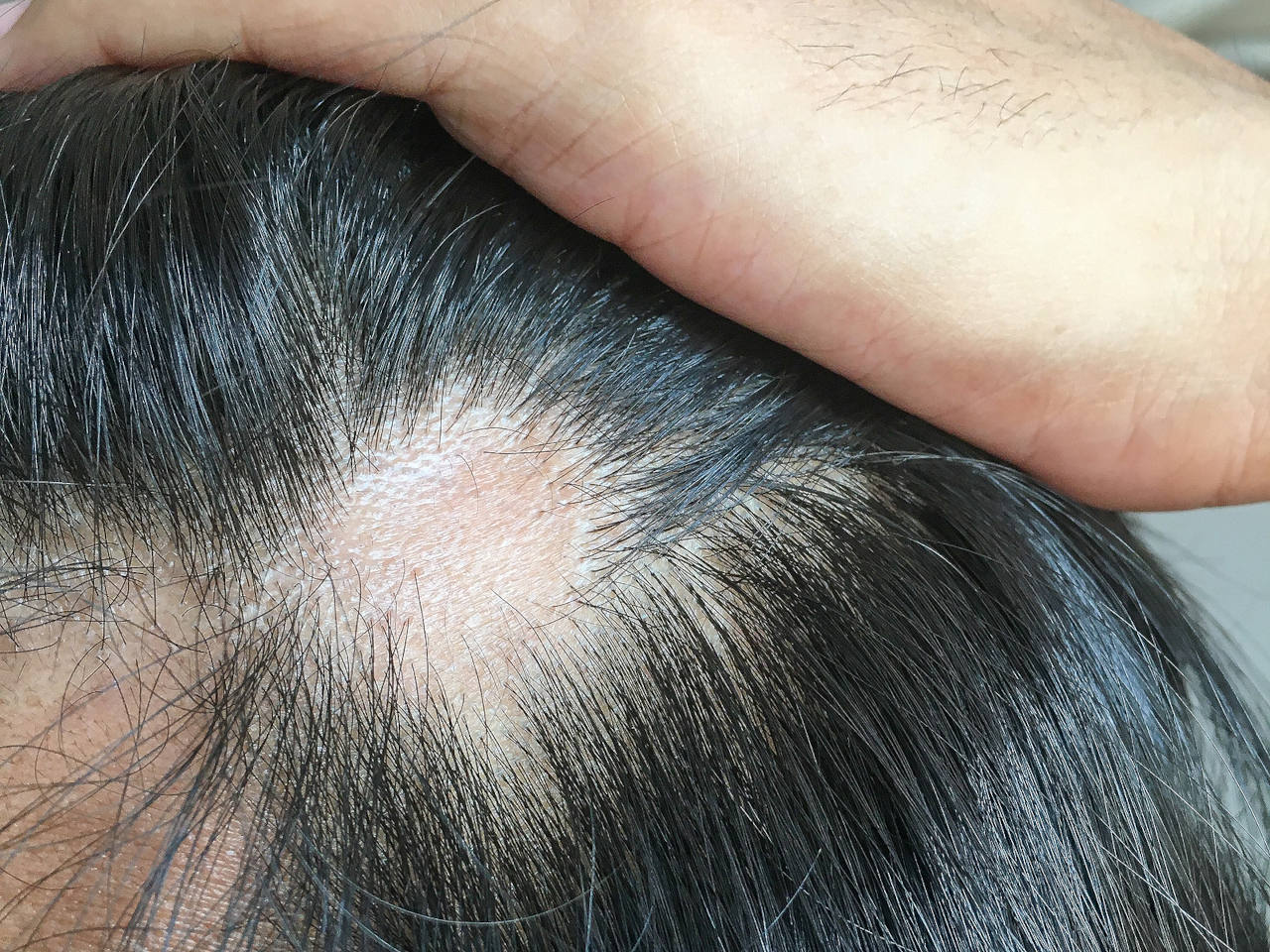 A scar on a scalp has caused a visible bald spot