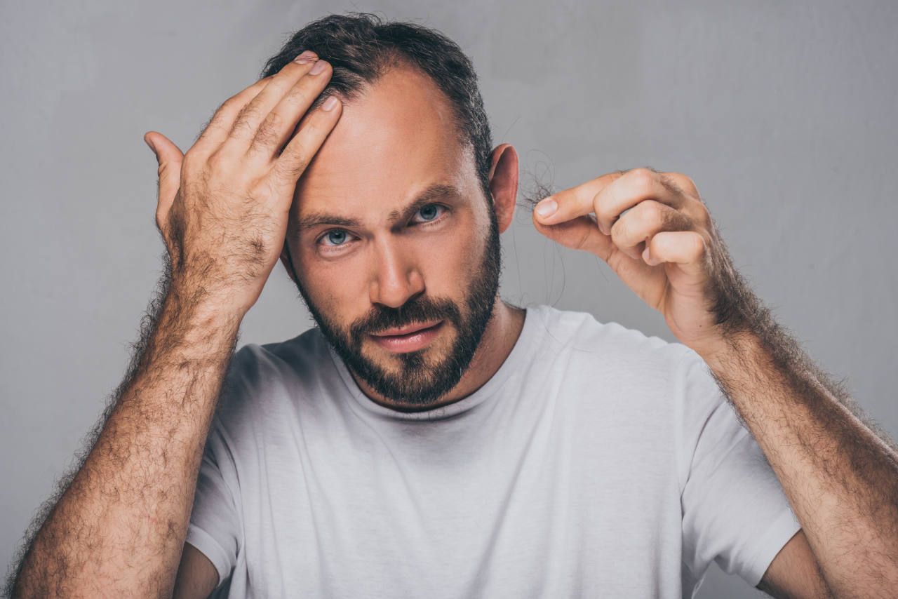 A man holding a tuft of hair concerned about his alopecia