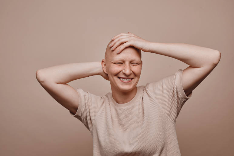 A woman with total baldness