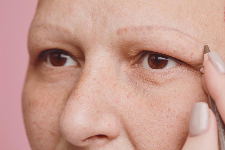 A woman with alopecia universialis