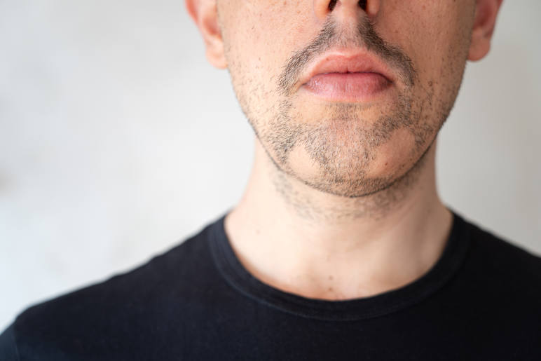 A man with patchy hair loss in his beard from alopecia barbae