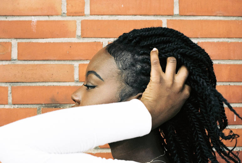 a black woman with braids suffering from traction alopecia