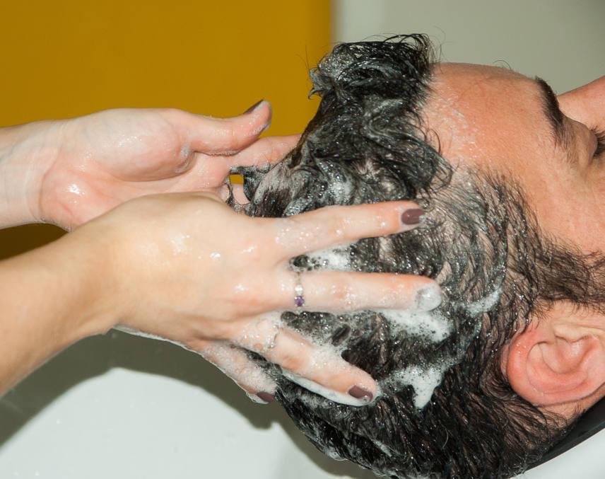 can hair loss shampoo counter a baldness issue