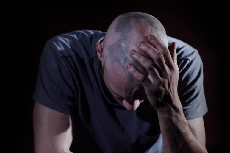 men anxious about his alopecia