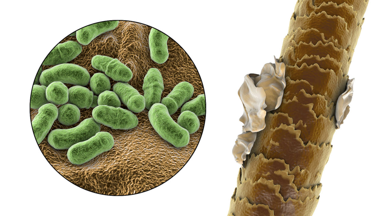 folliculitis is mainly caused by the malassezia genus of yeasts