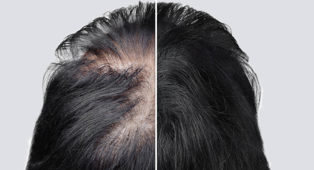 what are the different cure for baldness and how efficient are they ?