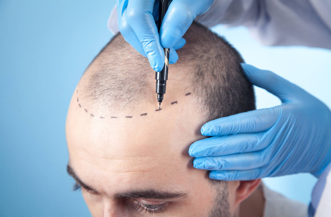 A hair transplant patient having his new hairline drawn on
