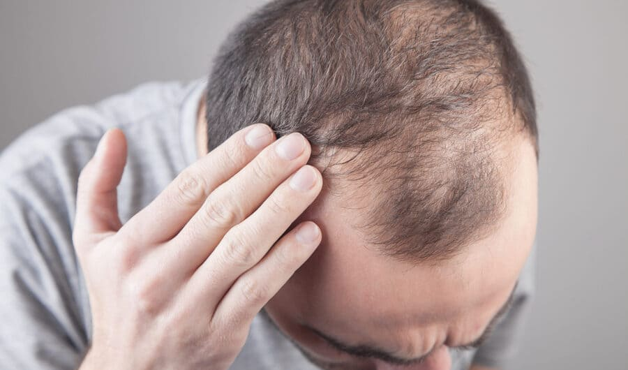A man with hereditary hair loss assessing his hair
