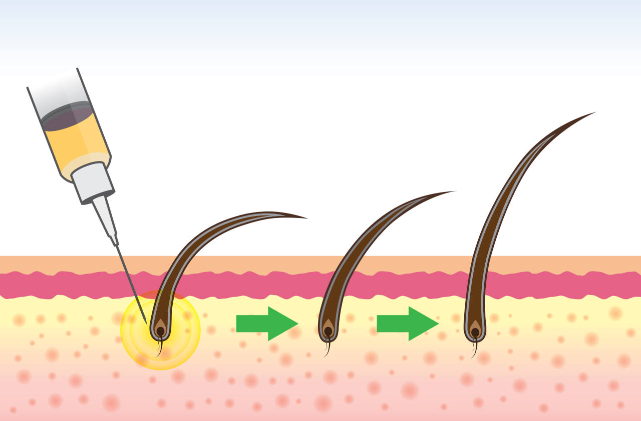 Hair follicle treatment where stem cells are injected into the scalp