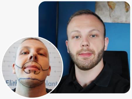 Beard transplantation with 3250 grafts