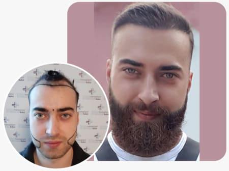 Beard transplant with 4250 grafts