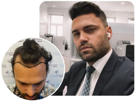 A patient at Elithair after a hair transplantation of 3150 grafts