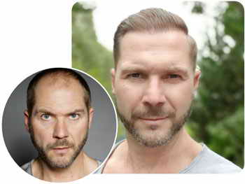 A patient at Elithair after a hair transplantation of 4100 grafts