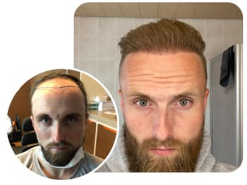 A patient at Elithair after a hair transplantation of 4700 grafts