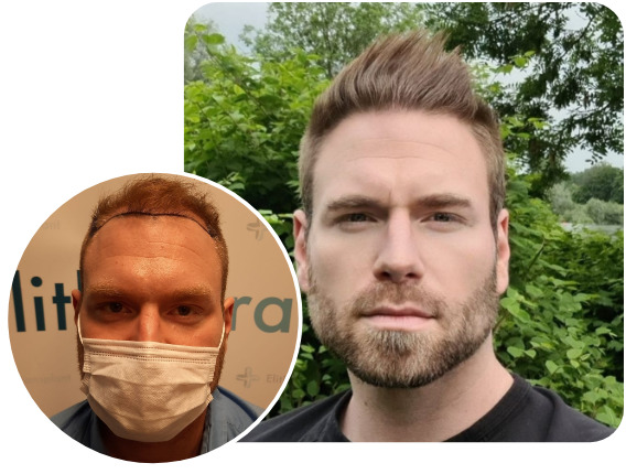 Elithair hair transplant patient after 4000 grafts with sapphire hair transplant