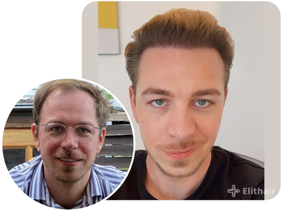 Elithair patient after a DHI hair transplant with 4850 grafts