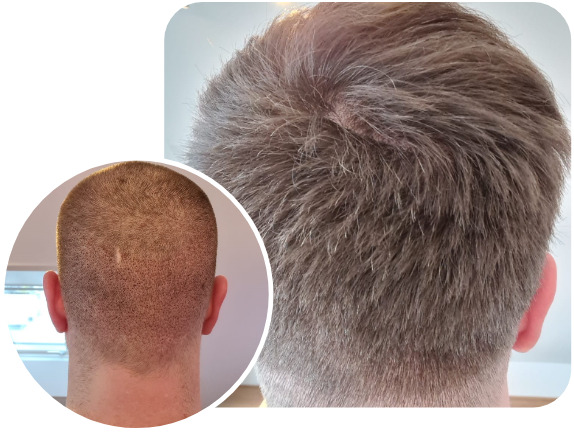 Patient after an Elithair FUE hair transplant technique with 3100 grafts