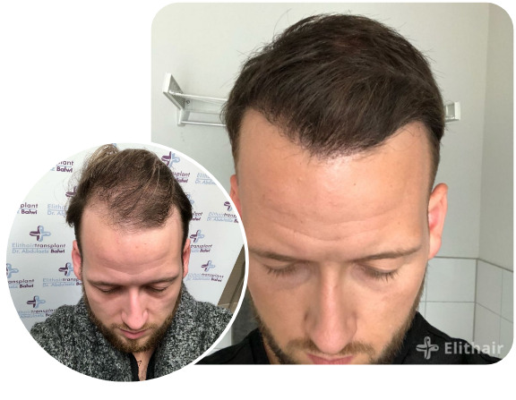 Elithair patient after a DHI hair transplant with 3000 grafts