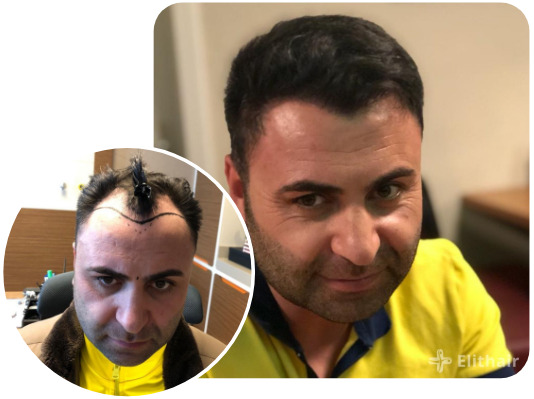 Elithair patient after their percutaneous hair transplantation with 4200 grafts
