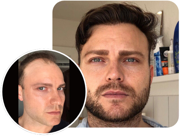 Elithair patient hair transplant results with 3700 grafts using the FUE technique