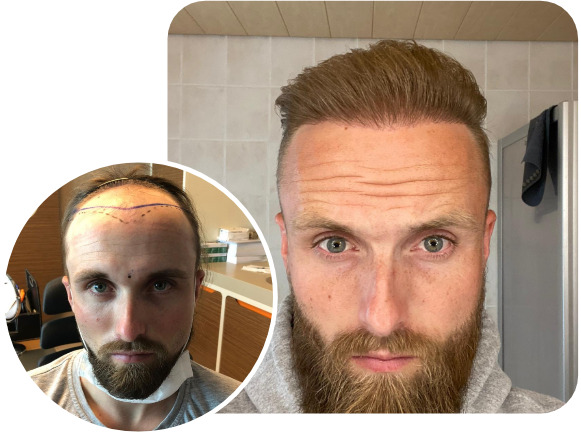 Elithair patient results from their FUE hair transplant technique with 4700 grafts