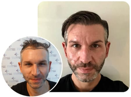 Patient at Elithair with 4250 grafts transplanted