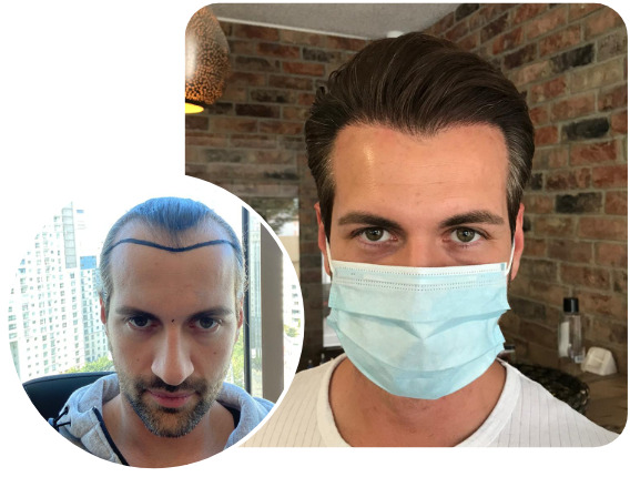 An Elithair hair transplant patient after 3800 grafts with sapphire hair transplant