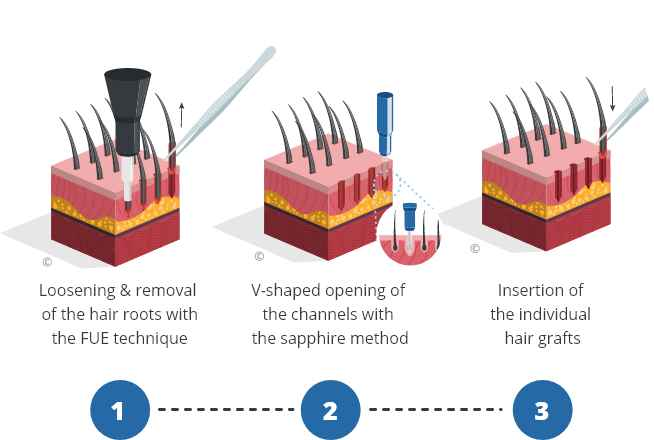 Infographic explaining the Sapphire hair transplantation procedure