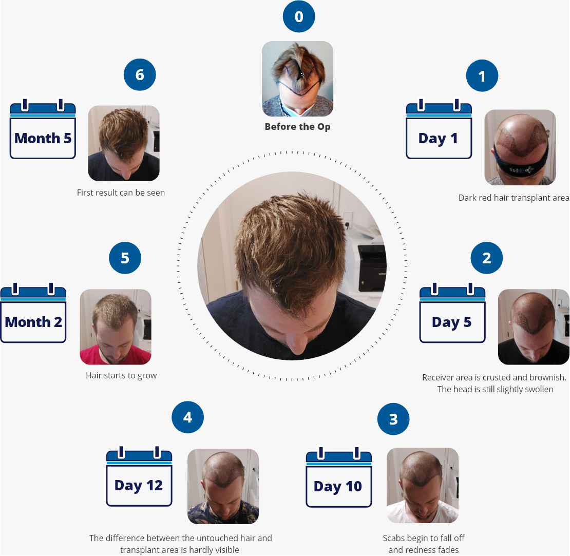 Infographic with photos showing the stages of the healing and recovery process after a hair transplant from day one to five months