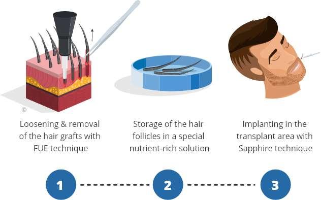 Infographic explaining beard transplantation