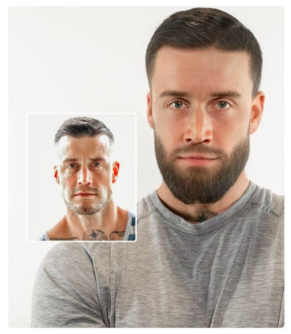 Man after beard transplant