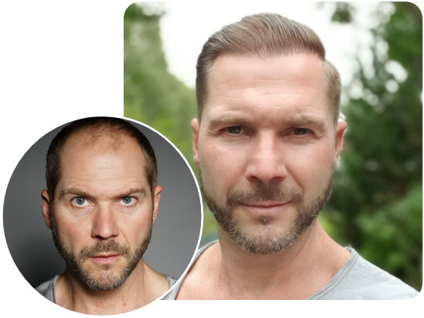 Before and after NEO FUE hair transplant patient with 4200 grafts