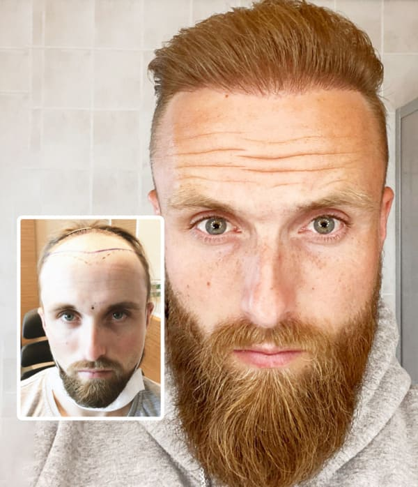 Final result in a patient after a hair transplant with 4700 grafts