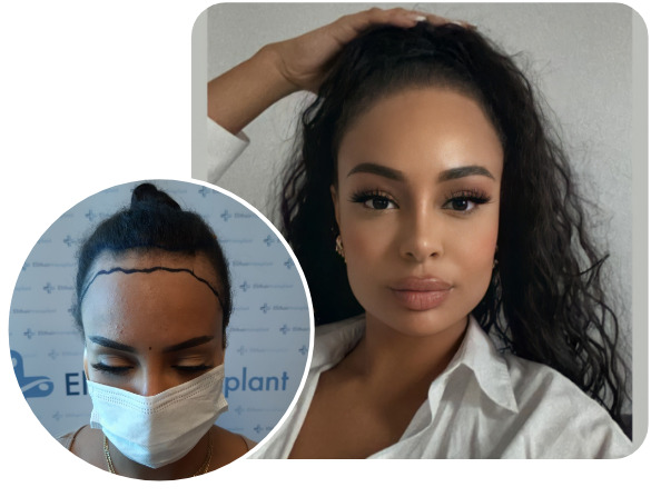 Picture of a woman with perfect results after her SDHI hair transplantation