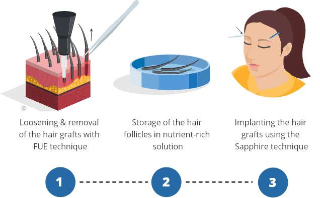 Infographic explaining the process of an eyebrow transplant