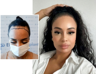 Woman after her hair transplant